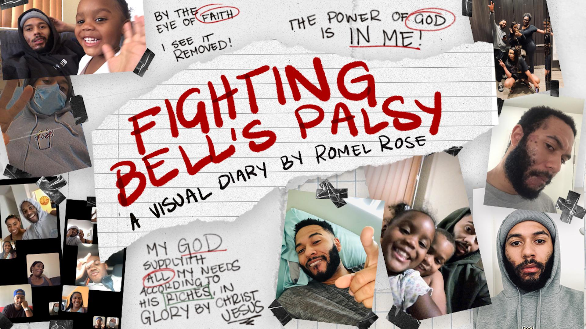 Fighting Bell's Palsy (A Visual Diary)